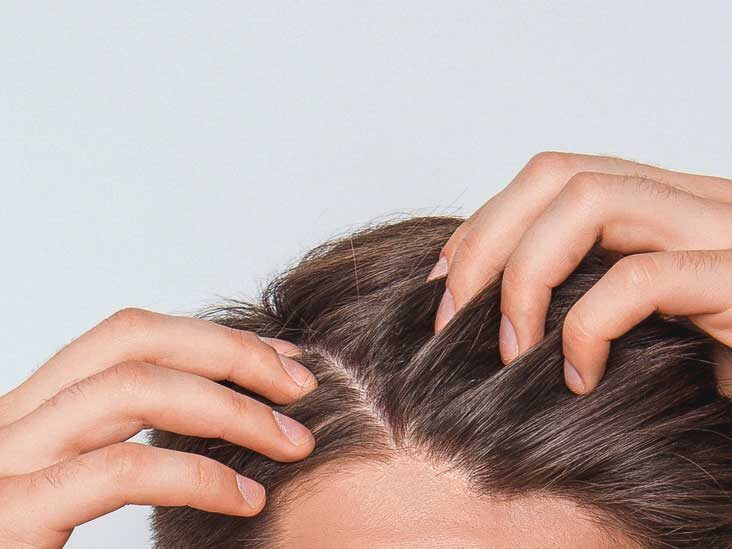 Scabs and sores on the scalp